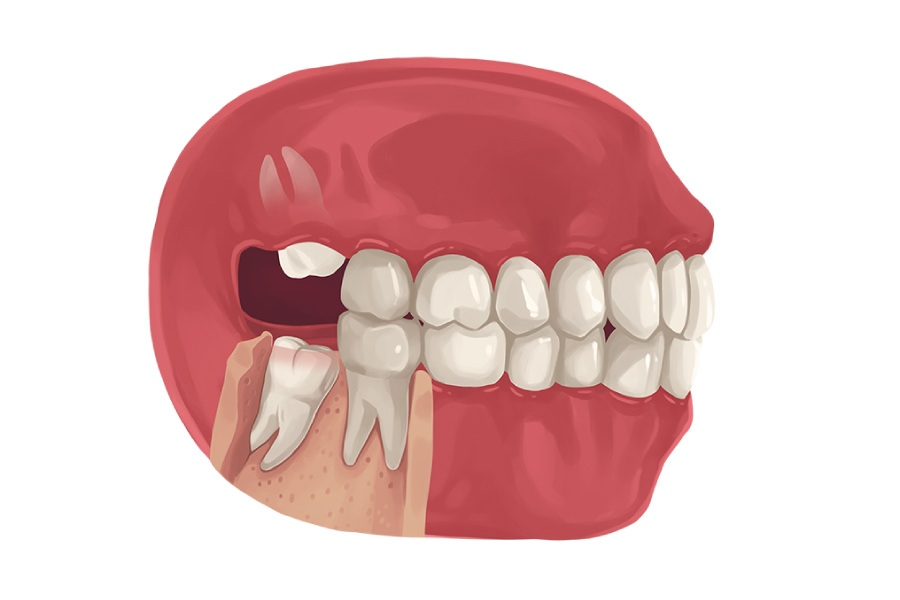 In sideways tooth coming wisdom Is it